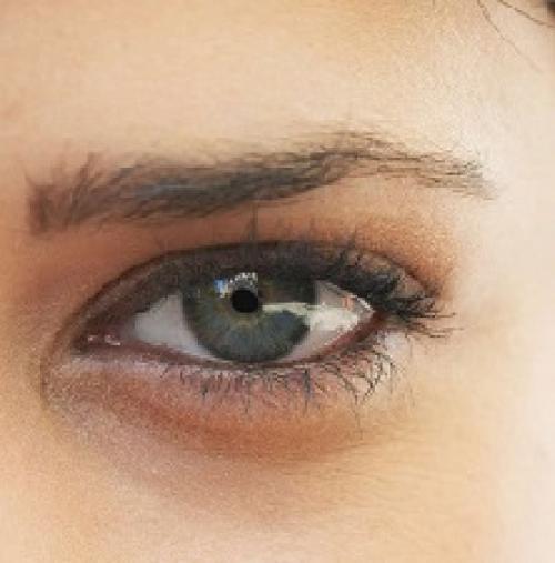 Тёмные круги под глазами причины у женщин. Темные круги под глазами: причины и лечение