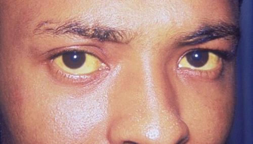 При каких болезнях желтеет кожа. Желтеют белки глаз при заболеваниях печени
