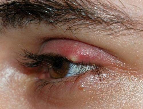 Как избавиться от ячменя на глазу быстро за 1 день. Лечение ячменя народными средствами